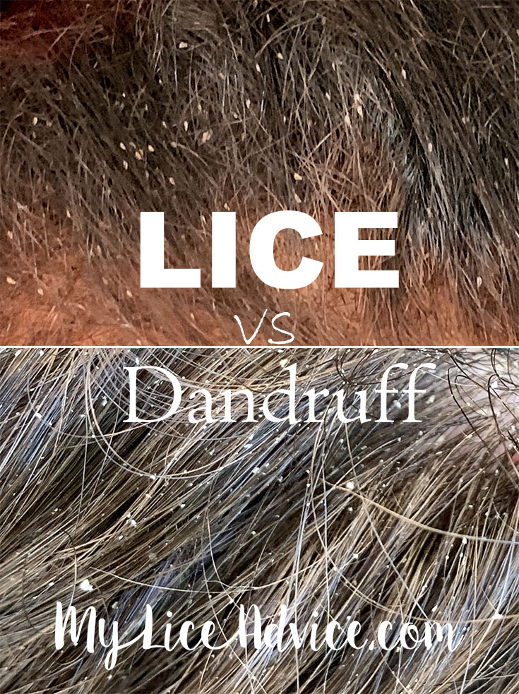 Side-by-side of lice and dandruff in the hair. Top image is lice, bottom image is dandruff