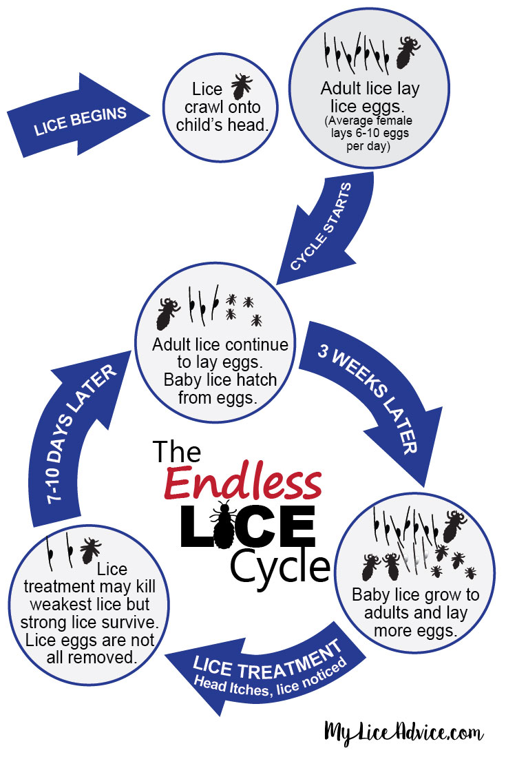 Infographic illustrating why many people can't get rid of lice