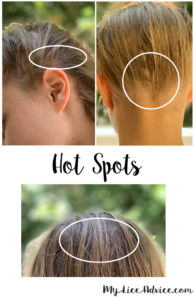 side-by-side images of blond girl's hair. Three circles identify the hot spots that lice usually lay lice eggs (nits)