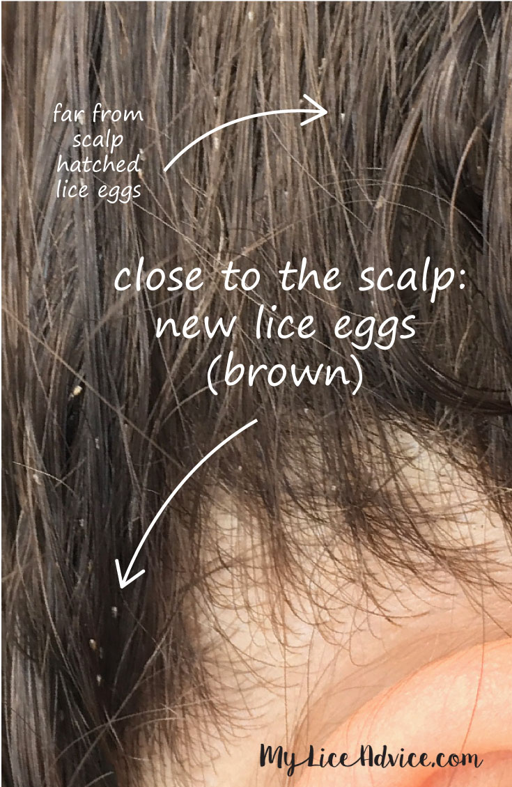 Lice eggs (nits) in dark brown hair with an arrow pointing to newly laid lice eggs close to the scalp and older hatched lice eggs farther down the hair strand