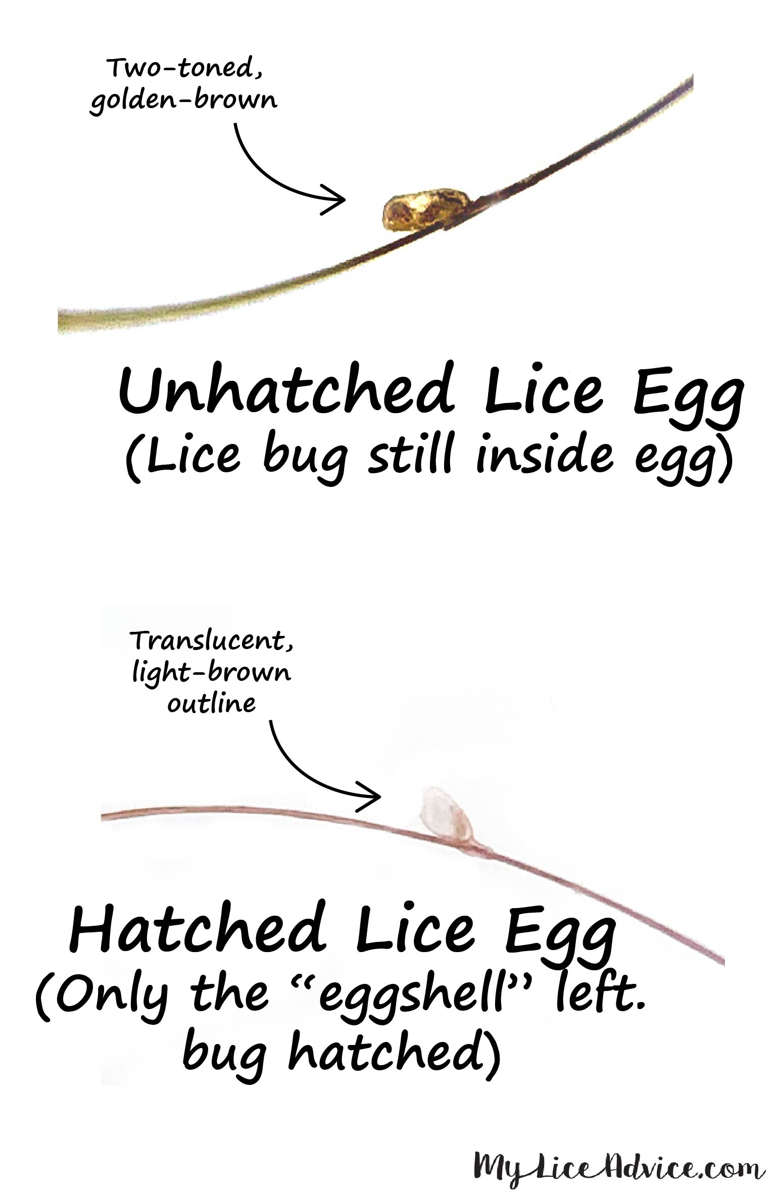 Side-by-side comparing hatched and unhatched lice eggs. Unhatched, brown lice egg with arrow and hatched, translucent lice egg with arrow