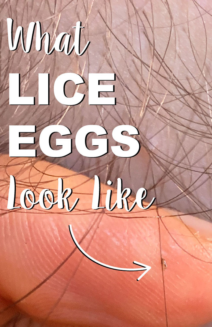 "Lice egg on a hair strand with the backdrop of a finger. The words ""What lice eggs look like"" with an arrow pointing to the nit"