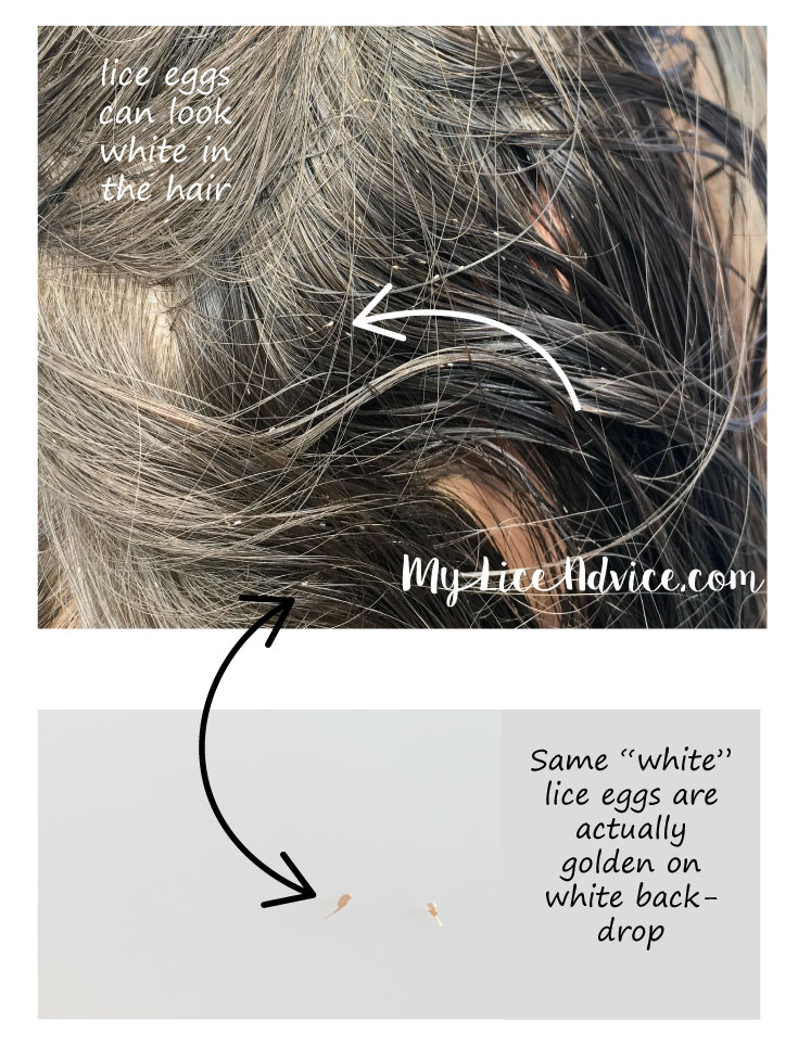 Side-by-side off lice eggs in the hair and on a white background demonstrating lice egg color