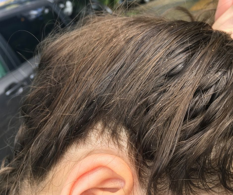 A woman's hair (brown) with white lice eggs in the hair. This woman has a serious infestation and has had lice for 3 years.