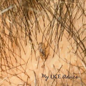 A lice bug on a hair strand near the scalp.