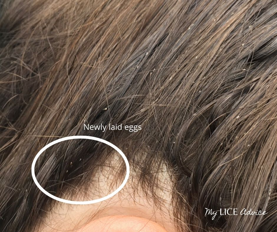 A woman with lice eggs near the scalp. The lice eggs are likely new.