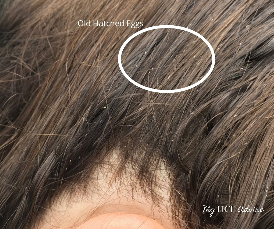 A woman with lice eggs attached to her hair. The eggs are attached further down the hair strand (away from her scalp). These eggs are likely already hatched and the woman has likely had lice for a long time.