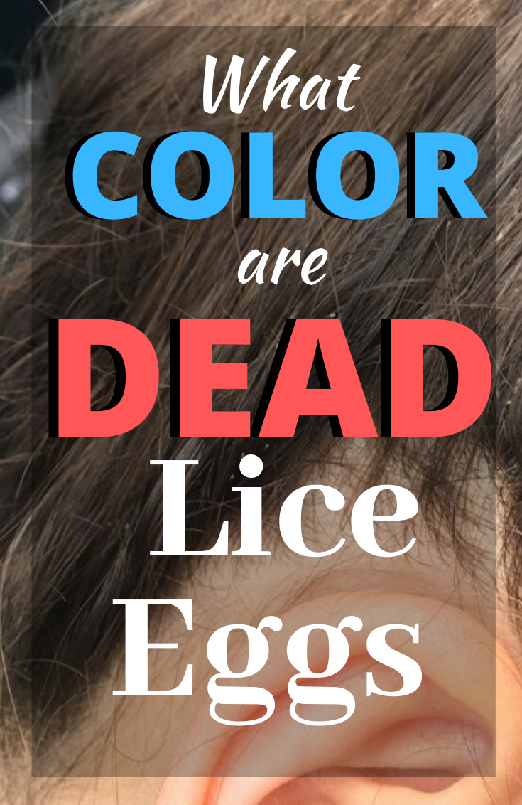 Loaded with pictures, discover the different colors of lice eggs and how you can determine the difference between live and dead nits in the hair.