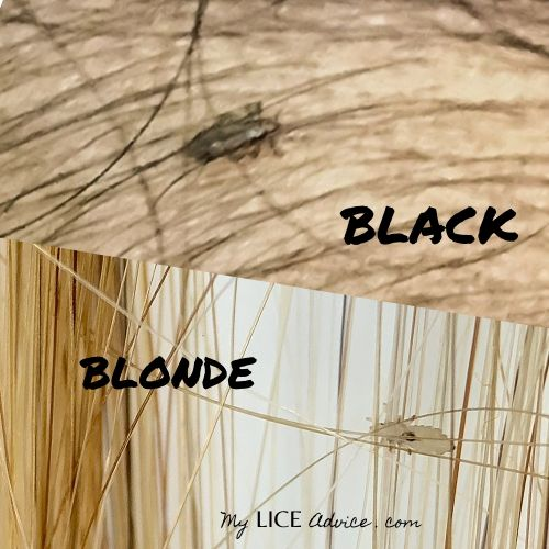 black hair vs blonde hair