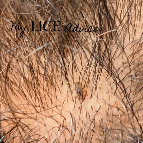 Black head lice