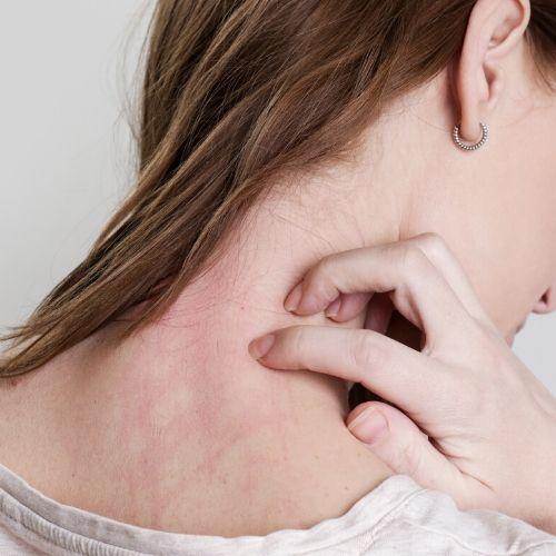 scratch neck