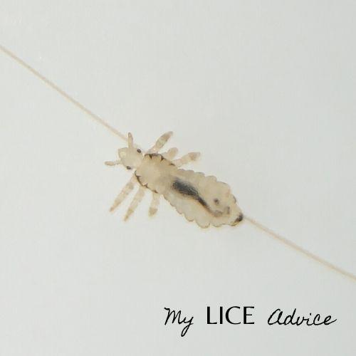 white lice