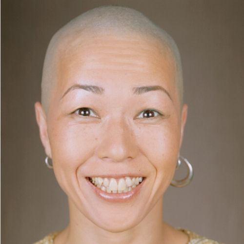 adult woman bald