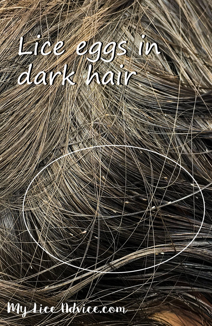 A woman with long dark hair has multiple lice eggs/nits in her hair. The nits are circled. The nits look like they are white in color and tear shaped. The words Lice eggs in dark hair is written across the picture.