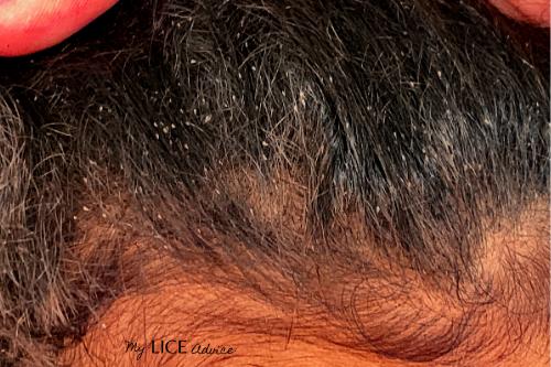 lice eggs