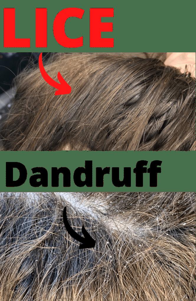 LICE vs dandruff