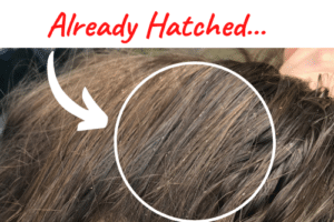 hatched lice eggs in hair